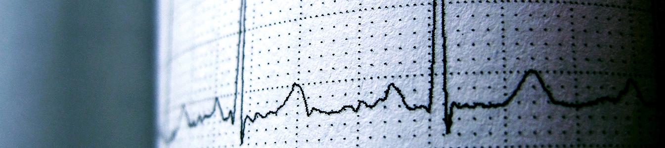 Elektrokardiogramm (EKG) zur Diagnostik von Krankheiten