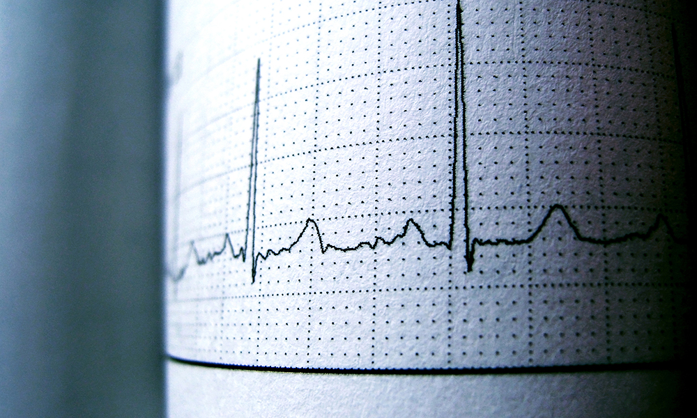 Herzrhythmusmessung mit Elektrodiagramm